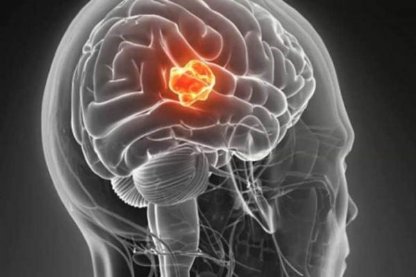 تشنج و تومور مغزی